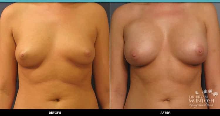 breast-augmentation-1-1