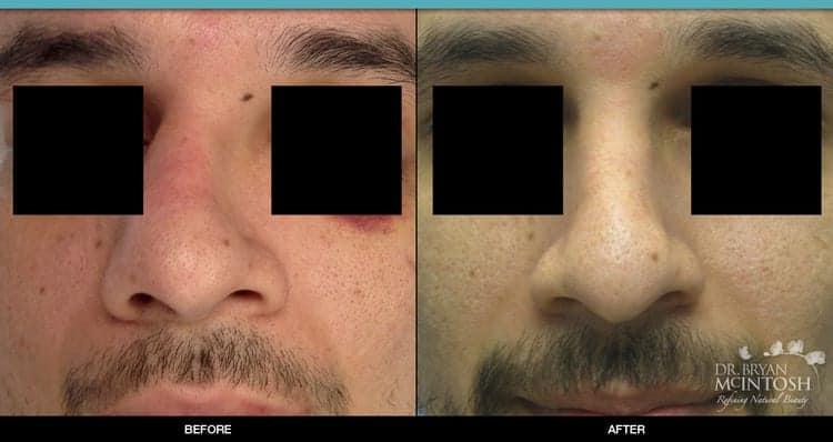 Nasal Fracture Repair