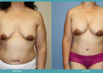 Breast Augmentation & Abdominoplasty