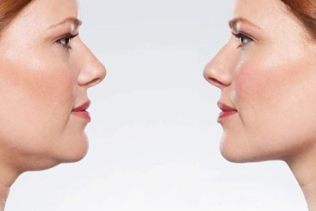 Kybella: Get Rid Of Your Double Chin, Easily And Effortlessly With An Injectable Treatment!