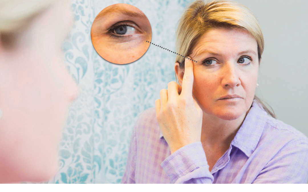 Brow Lift Or Eyelid Surgery? Don't Fall Prey To An Inaccurate Diagnosis!